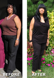 HCG Weight Loss Natalie Before and After